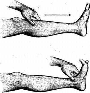 патологический рефлекс оппенгейма