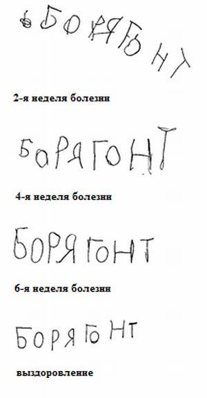 почерк ребенка с хореей