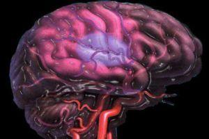 нарушение нейронов мозга
