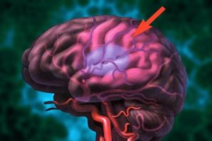 гематома мозга
