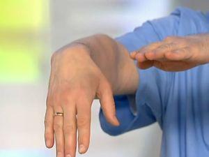 плегия руки