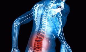 травма и повреждение нервов спины