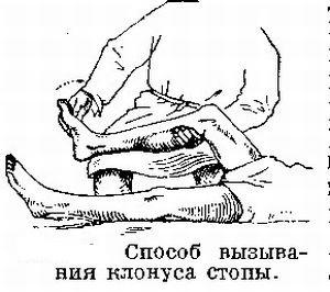 клонус стоп