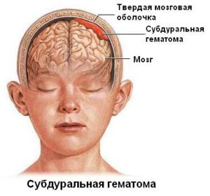субдуральная гематома мозга