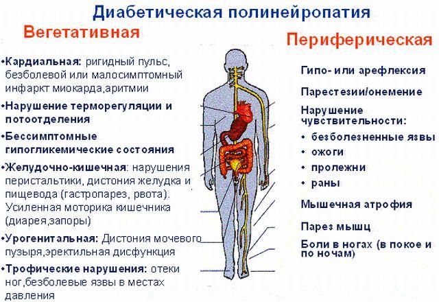 Виды диабетической нейропатии