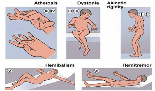 Разновидности синдрома