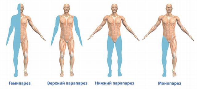История болезни по неврологии левосторонний центральный гемипарез