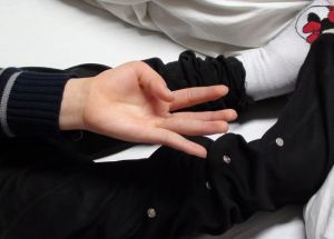 атетоз рук