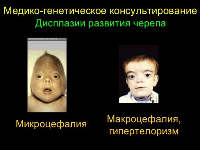 Дисплазии головного мозга