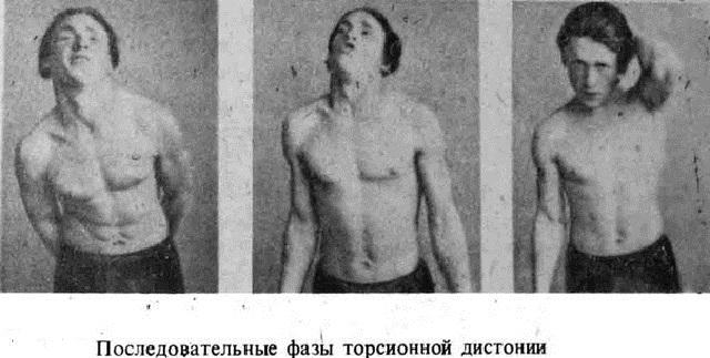 торсионная дистония