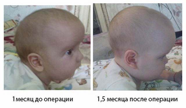 До и после операции по коррекции черепа