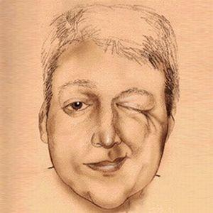 гемиспази лица