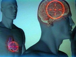 инфаркт головного мозга чем отличается от инсульта