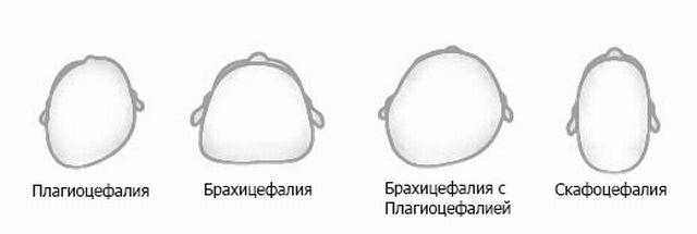 как выглядят аномалии развития черепа