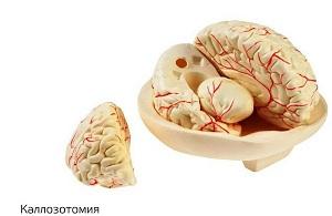 Каллозотомия