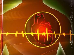 кардиоваскулярный синдром