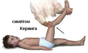 Кернига симптом