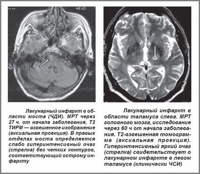 Поражения мозга на МРТ