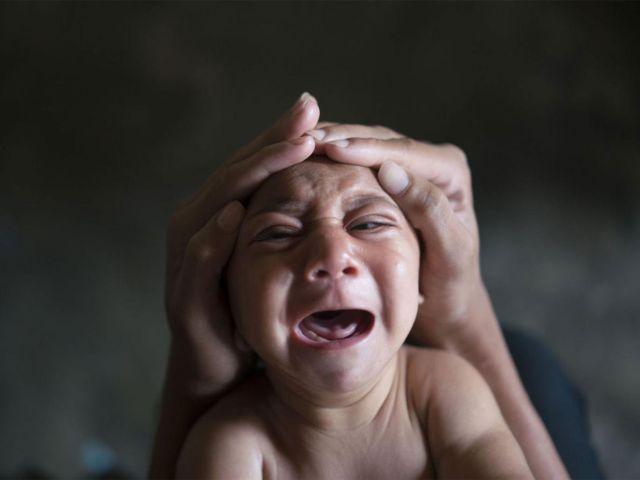 Микроцефалия фото ребенка