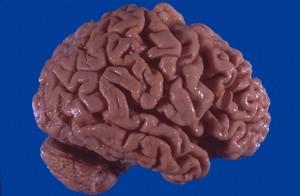 аномалии мозга