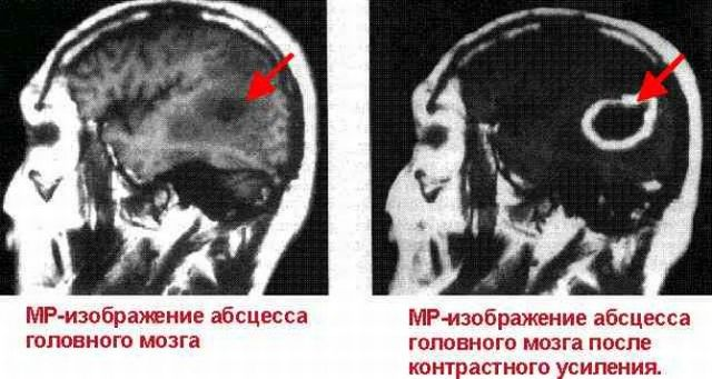 МР изображение абсцесса