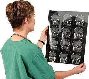 диагноз по мрт мозга
