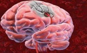 мозг при инсульте
