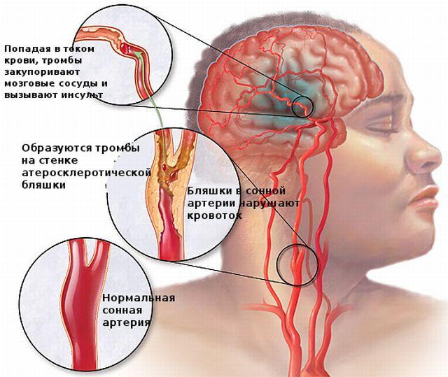 Образование тромбов в головном мозге