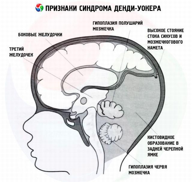Симптомы синдрома уокера