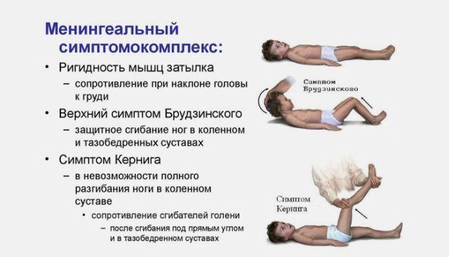 менингеальный симптомокомплекс