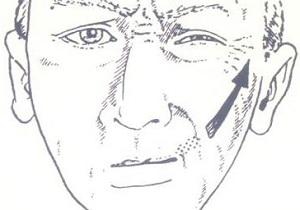 спазм лицевого нерва