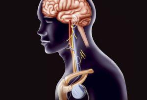 Стимуляция блуждающего нерва