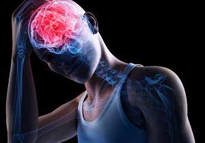 поражение мозга при инсульте