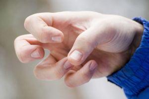 Судорога руки