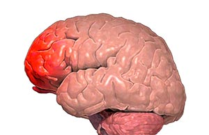 Травма мозга фото