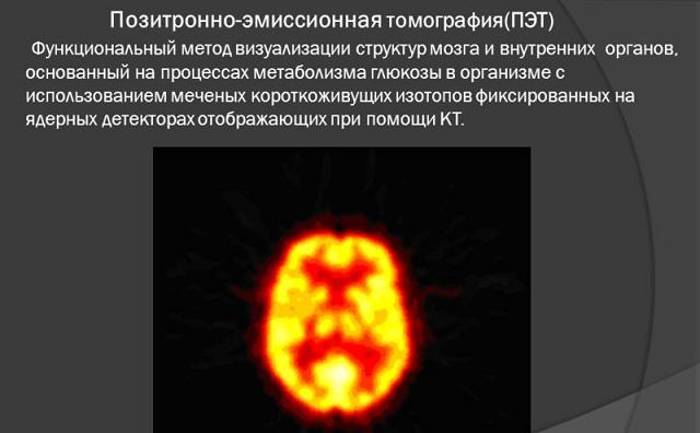 Что такое эмиссионно позитронная томография