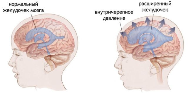 давление жидкости в мозгу