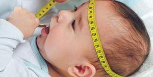 Обмер головы для диагностики
