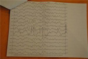 эпилептиформная активность