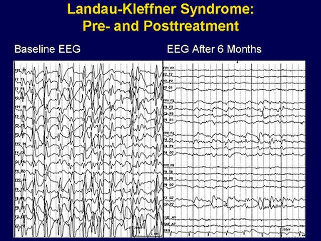 Электроэнцефалография при синдроме Ландау
