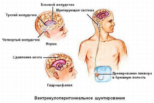 Вентрикулоперитонеальный шунт