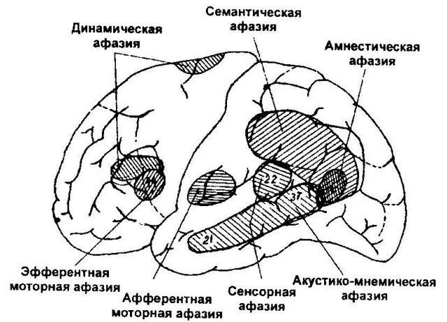 Зоны поражения в мозгу