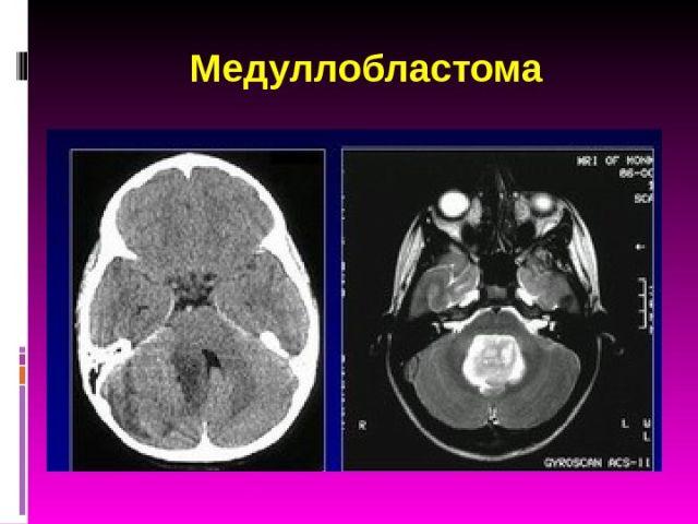медуллобластома мозжечка МРТ