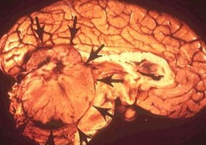 медуллобластома мозжечка
