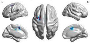 поражение мозга при оральной апраксия
