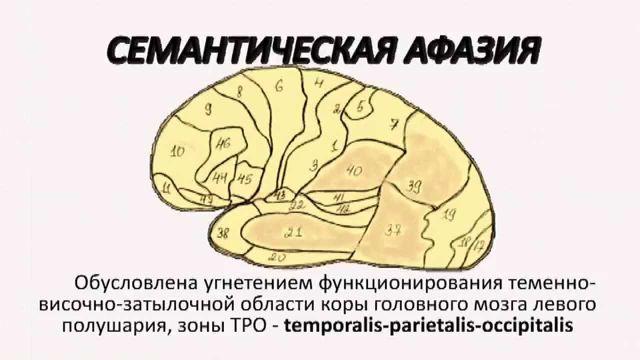Локализация поражения в головном мозгу