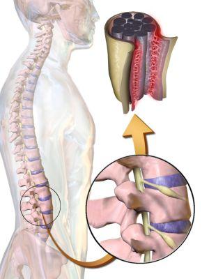 Спинальный арахноидит