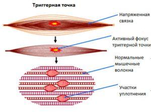 Миофасциальний болевой синдром шейного и других отделов: симптоми и лечение