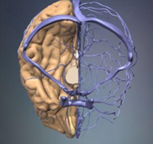 вены и сосуды мозга