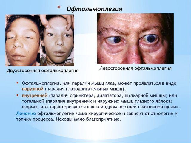 наружная и внутренняя офтальмоплегия